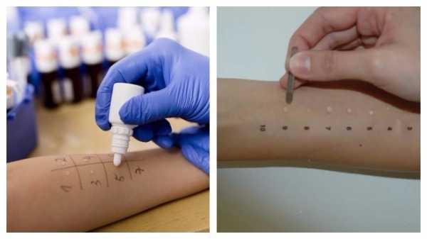 Что делать при аллергии на тыкву: лечим эффективно и предотвращаем заранее