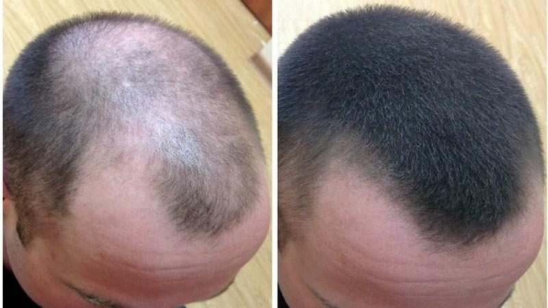 Луковые маски для волос для лечения облысения