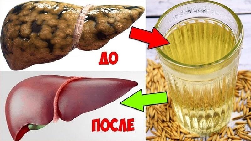 Как очистить печень в домашних условиях быстро и эффективно народными средствами от токсинов