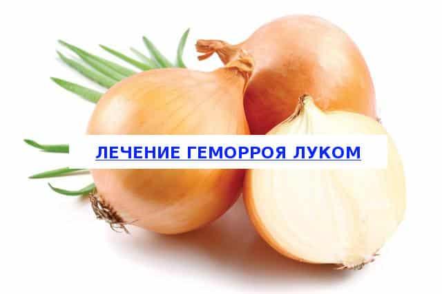 Особенности лечения геморроя луком